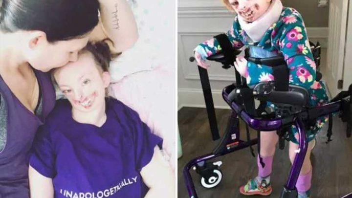Disabled girl who was was bullied by vile trolls has died aged 10 as mum pays heartbreaking tribute