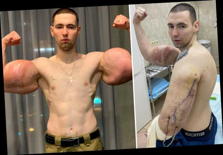Russian 'Popeye' who injected triceps with OIL has life-saving surgery to remove 'rotting' fake muscles