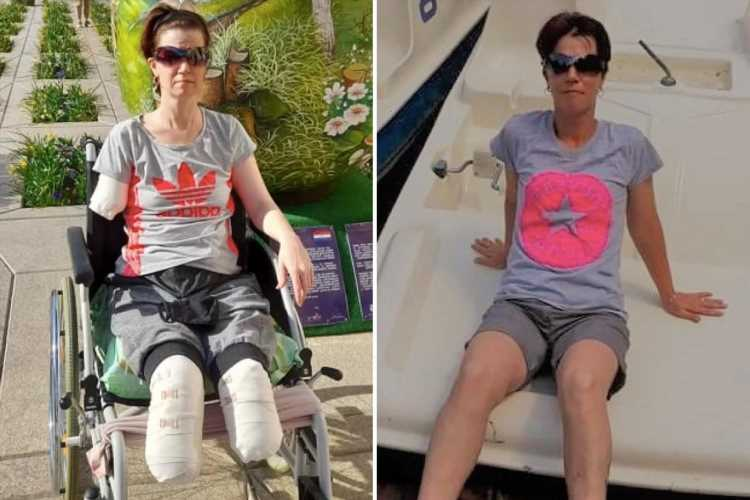 Woman, 39, loses three limbs in 11 days after going to hospital with TUMMY pain